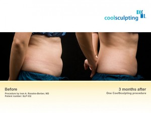 Coolsculpting patient- before and after