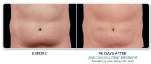 male abdomen lower abdomen