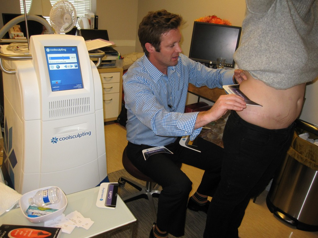 Assessing patients for CoolSculpting at Horton SPA