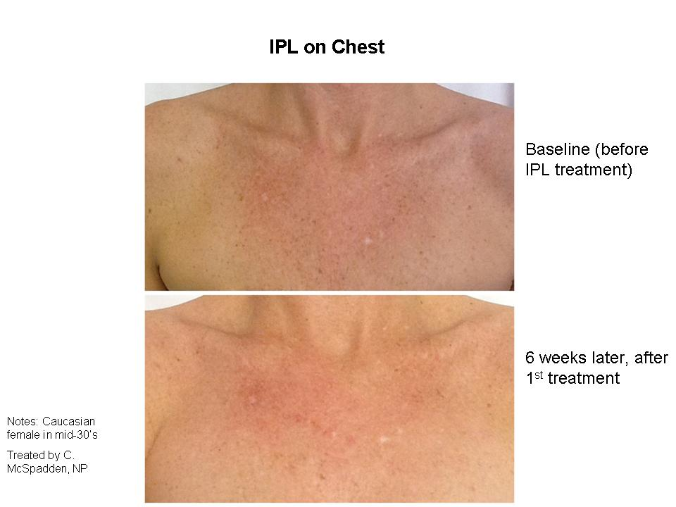 Chest IPL before and after