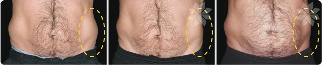 Another before and after CoolSculpting result in men.  Results are evident by 60 days, with final results by 4 months.