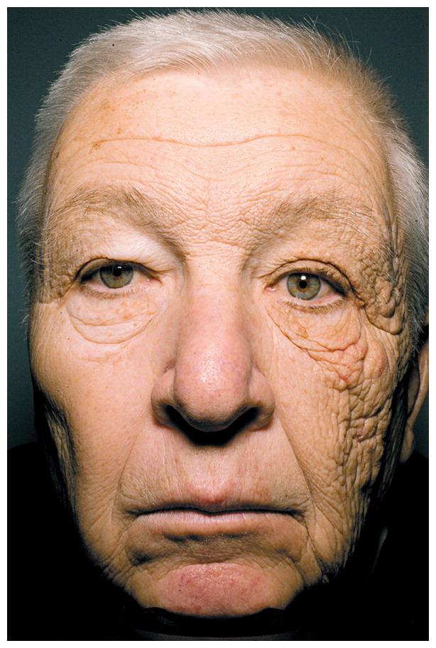 Unilateral dermatoheliosis -
