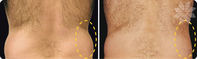 Before and after - CoolSculpting of the flanks in men