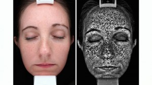 Most sun damage is invisible! A shocking analysis under special light shows deep sun damage that is not yet visible at the surface.  IPL can help!