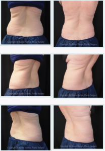 CoolSculpting PERMANENTLY reduces fat up to 25% in a single hour, performed in Dr. Horton's office without surgery or downtime