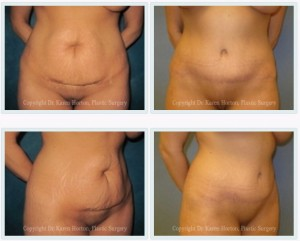 Before and after abdominoplasty - visible separation of rectus abdominis muscles and loose, baggy skin are removed and the result is a tighter, more contoured abdomen