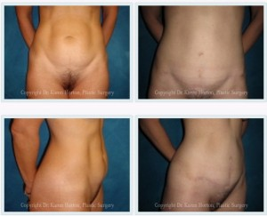 "Before and after abdominoplasty - obvious rectus diastasis is corrected from top to bottom, with a low, short scar.  While some might call this a ""mini"" abdominoplasty, the full job was completed!"