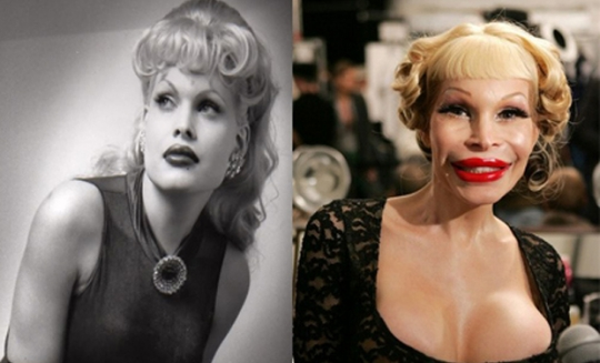 amanda-lepore-before-and-after