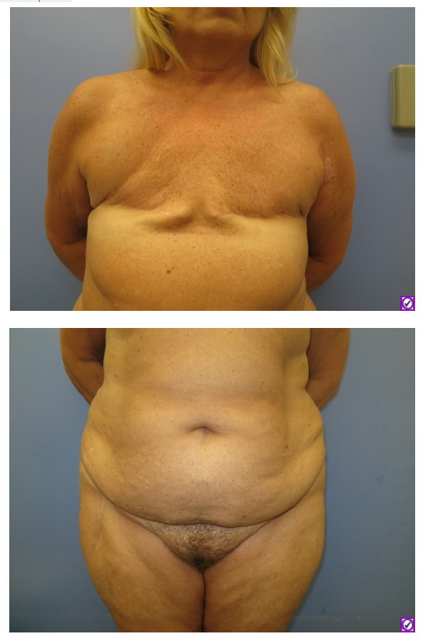 After bilateral mastectomies for breast cancer but before breast reconstruction