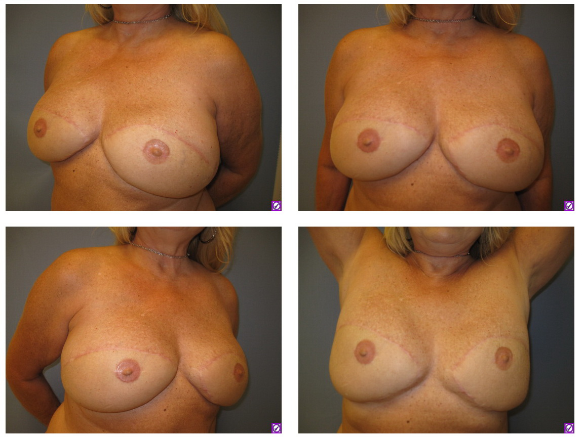 Following bilateral DIEP flap breast reconstruction, nipple reconstruction and areola tattoo.