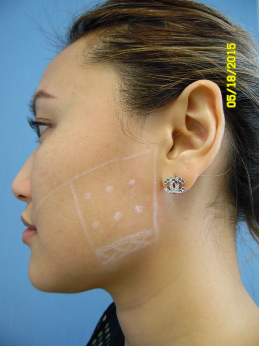 Markings on a patient treated for bruxism with Botox injections.  The masseter muscle is selectively weakened to treat excessive teeth grinding and clenching, with the added benefit of improved jaw contour.