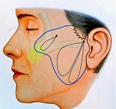 The MACS lift (minimal access cranial suspension) focuses on the neck and jowls and is a perfect short-scar, permanent solution to treat the male neck!