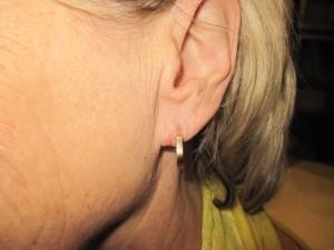 lobule torn earlobe repair