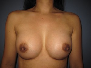 A breast augmentation result at rest