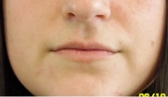 Natural-Looking Lip Augmentation