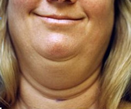 Double-Chin