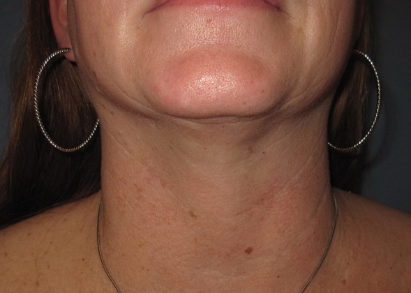 after neck lipo front