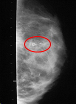 calcifications on mammogram after fat grafting