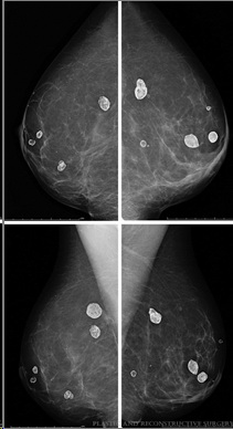 oil cysts on mammogram after fat grafting