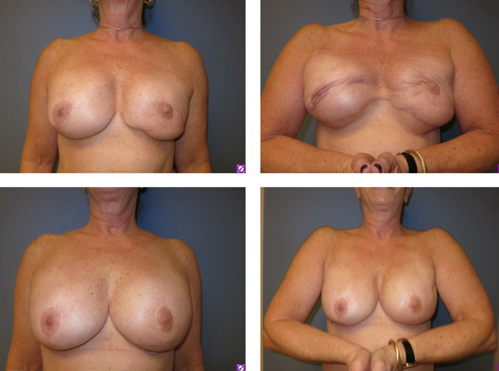 before after pec muscle replacement to chest wall