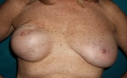 before implant under muscle