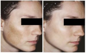 melasma-before-after