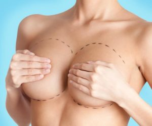 breast-revision-westlake-plastic-surgery-callout