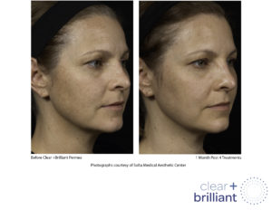 Can Clear Brilliant Laser Treatment Be Paired With Botox Cosmetic