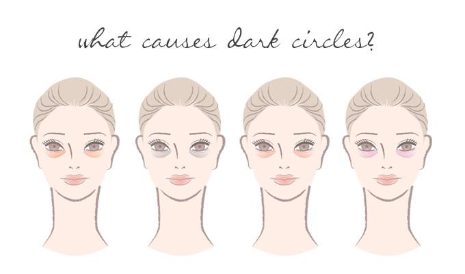 what-causes-dark-circles