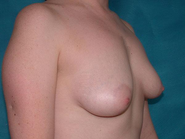 Tubular breast deformities